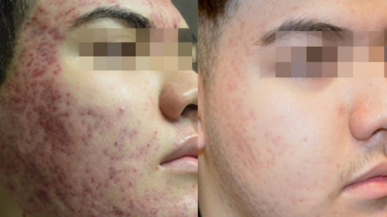 Before & after - Morpheus8 acne treatment