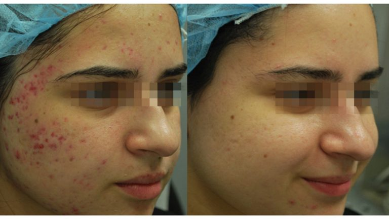 Before & after - Morpheus8 acne scars treatment