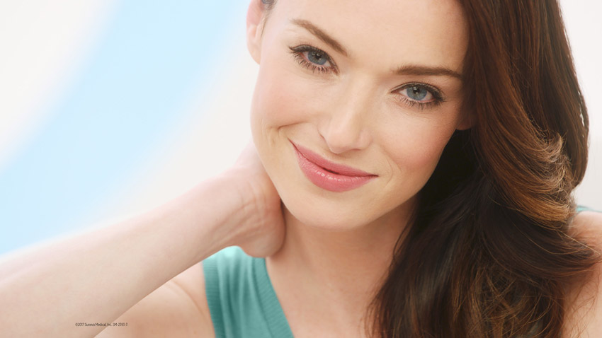 Bellafill acne scars resolved