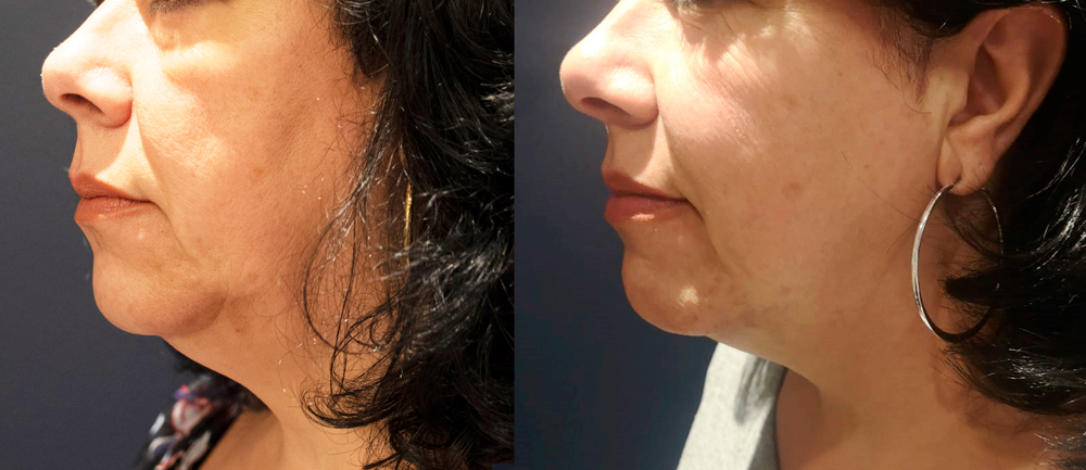 Before & after - Forma double chin treatment