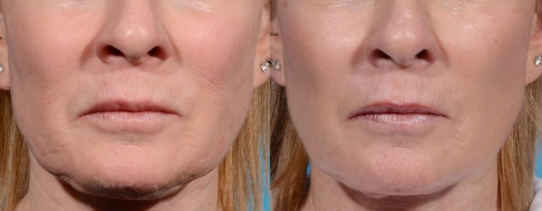 Before & after - Morpheus8 wrinkle treatment