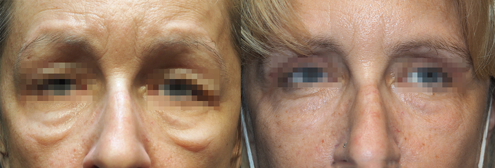 Before & after - Forma wrinkle treatment under eyes