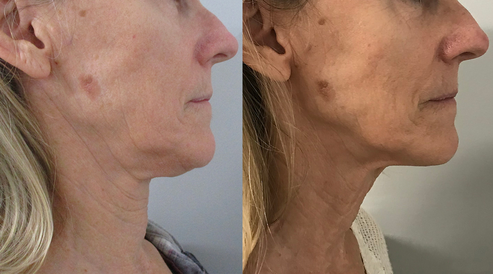 Before & after - Forma sagging skin treatment