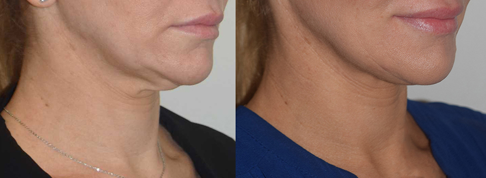 Before & after - Forma neck treatment