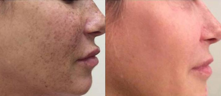 Complexion brightening - Before and After Lumecca treatment