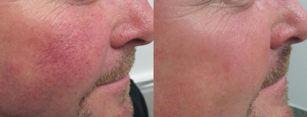 Rosacea treatment on face -Before & after IPL