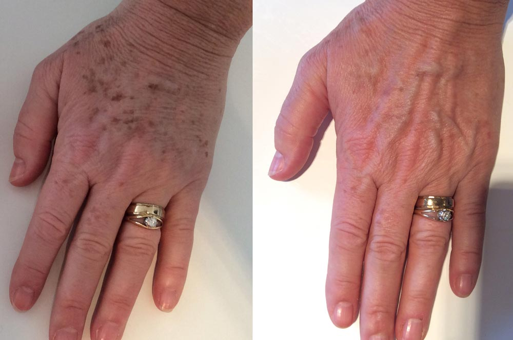 Sunspot treatment on hands - Before & after IPL of the hands