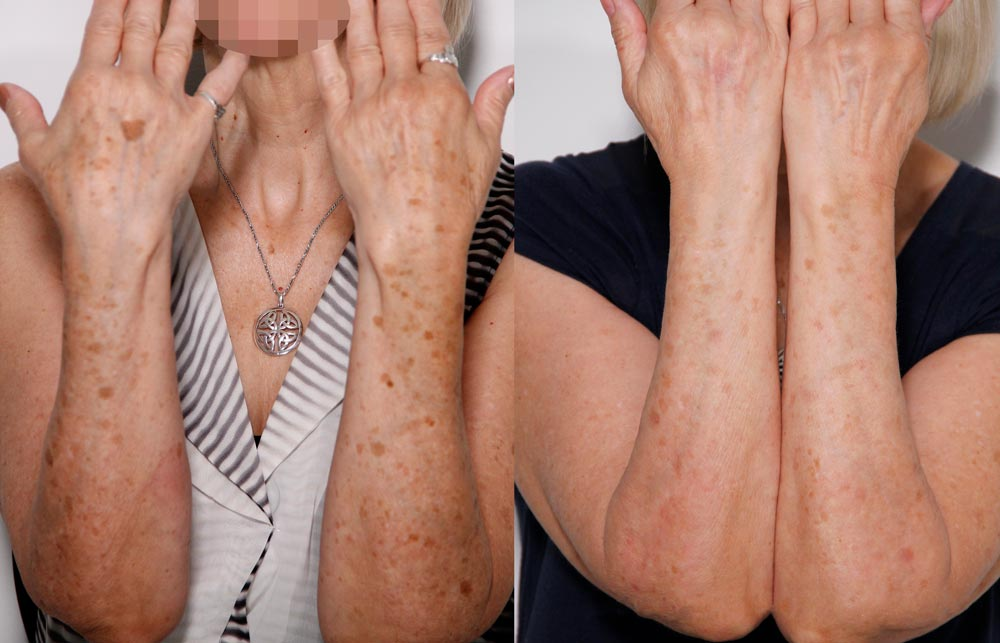Sunspot treatment on arms - Before & after Lumecca on arms