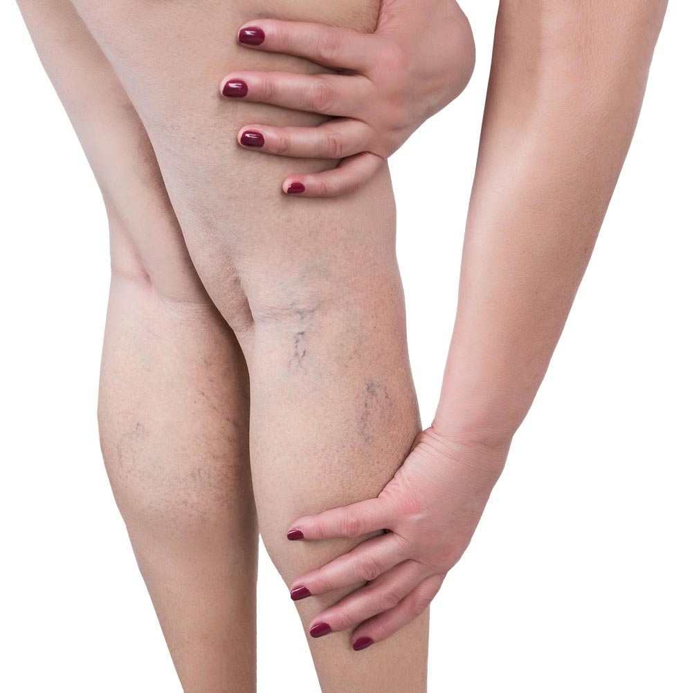 Spider veins - Before and After