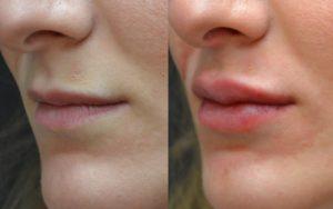 Lip enhancement - Juviderm