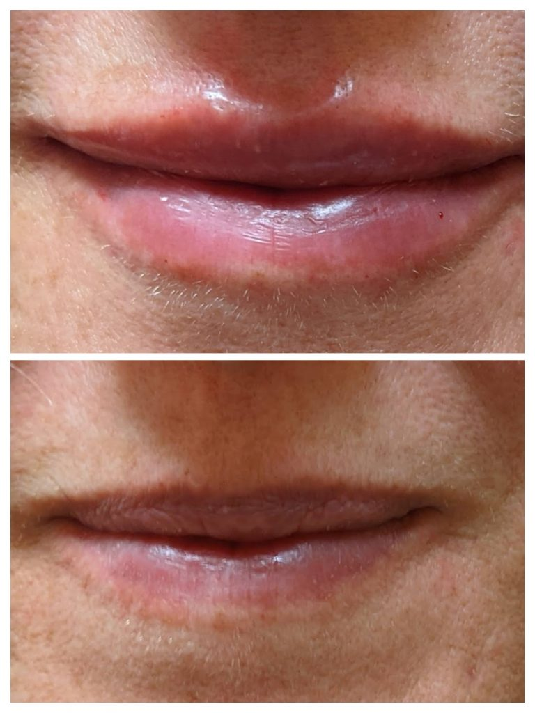Lip enhancement -Belotero 1syringe