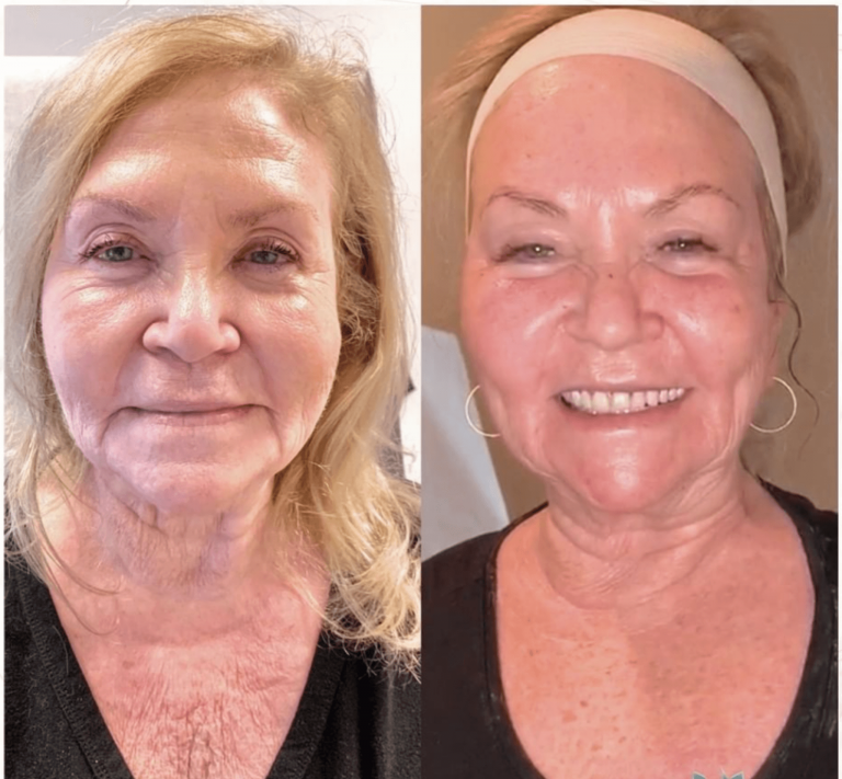 Before & after - Morpheus8 resurfacing treatment
