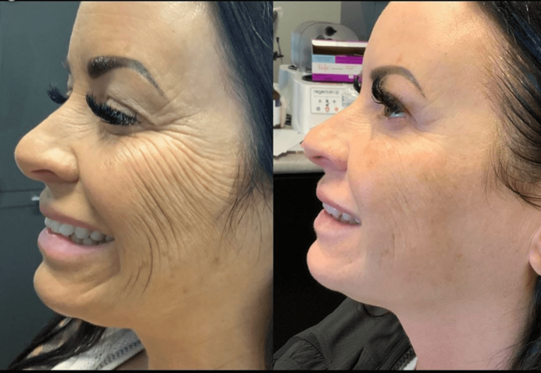 Before & after - Morpheus8 skin tightening and deep folds treatment