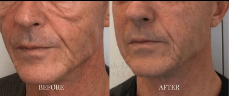 Before & after - Morpheus8 skin tightening