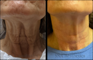 Before & after - Morpheus8 neck resurfacing