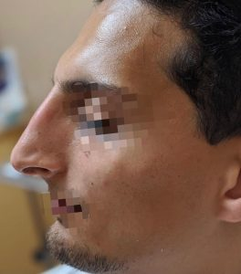 After non-surgical rhinoplasty with Radiesse
