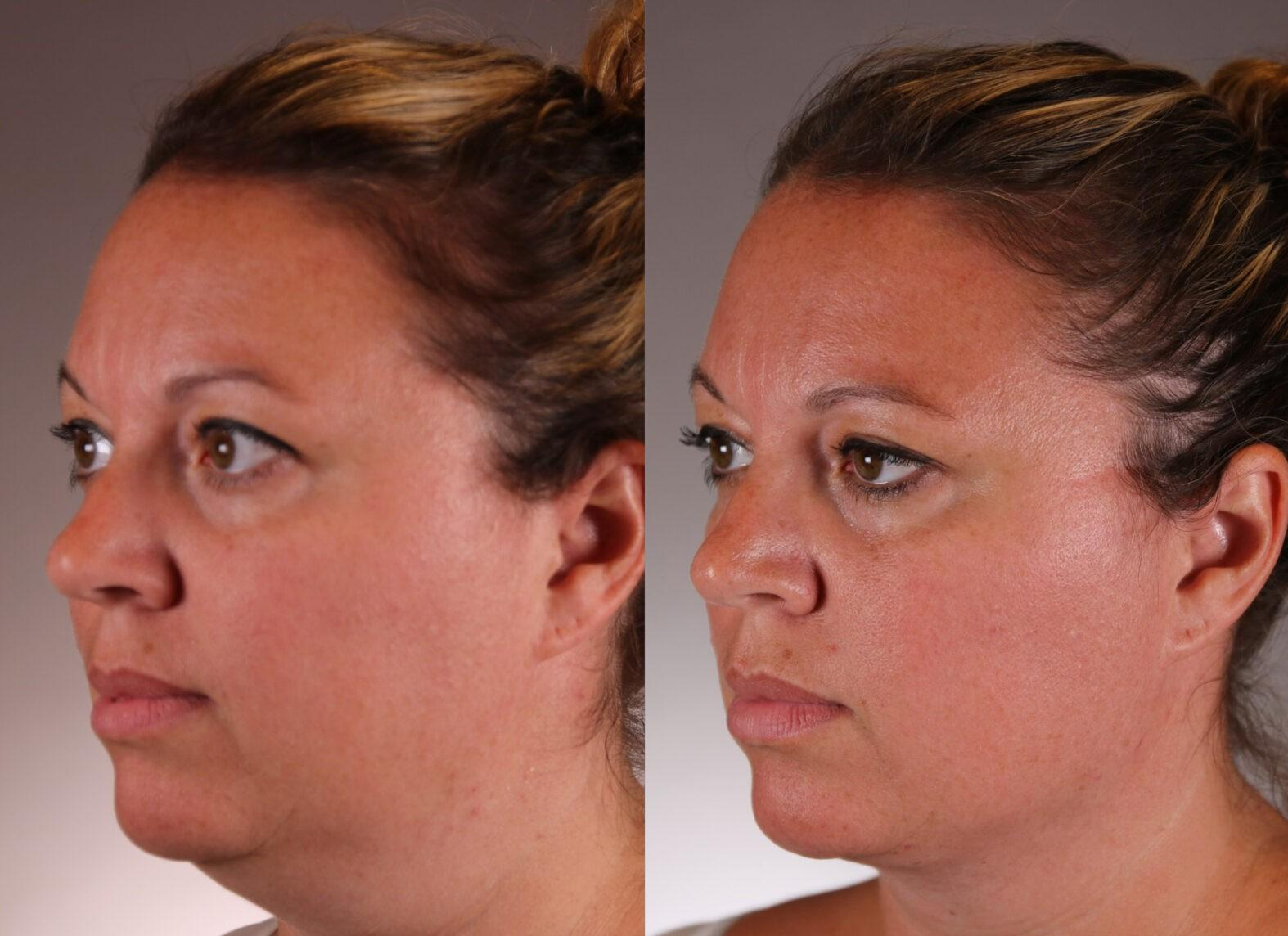 Face and neck contouring